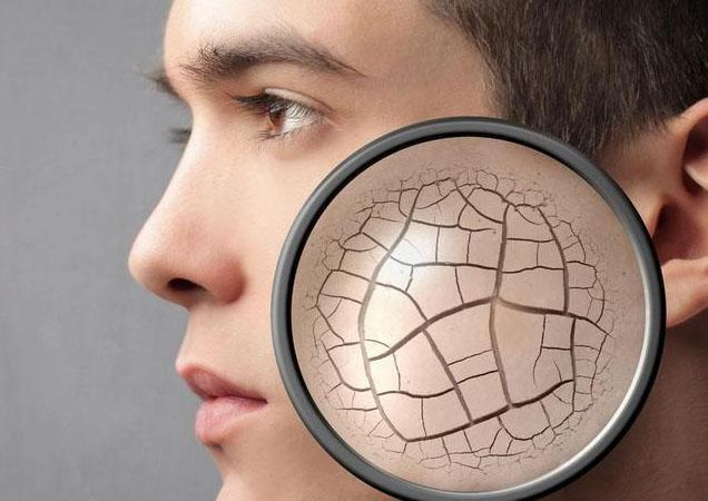 冬天皮肤干燥该怎么护理 皮肤干燥用什么样的护肤品